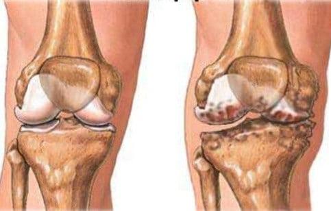 Артроз коленного сустава как снять сильные боли