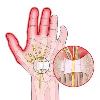 Болит запястье левой руки причины как лечить