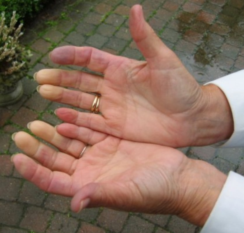почему болят суставы левой руки