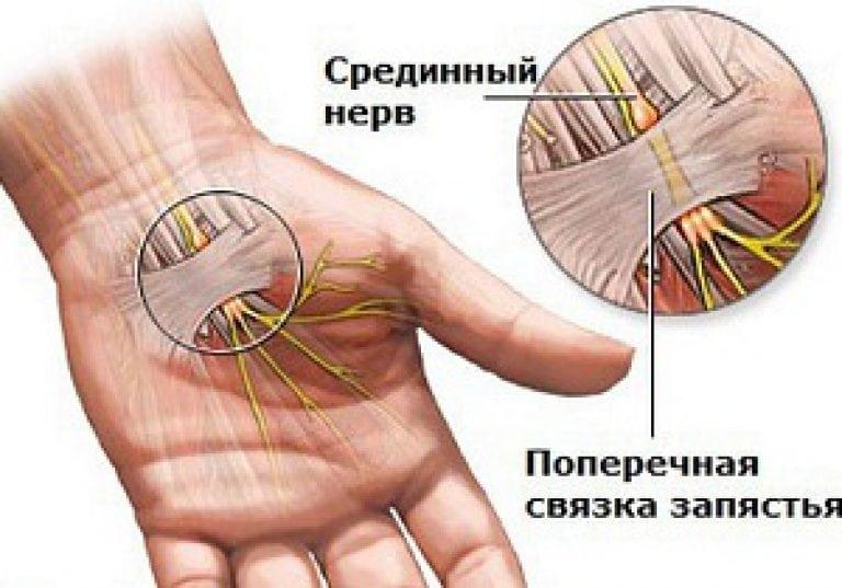 Болит сустав безымянном пальце корень живокоста применение для суставов
