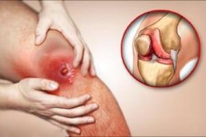 Болят суставы и кости: что делать и как снять боль