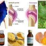 методы нетрадиционной медицины в лечении болей в суставах