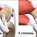 растяжение коленных связок
