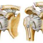 Травмы плечевого сустав