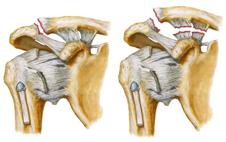 Головная боль при грыже шейного отдела лечение