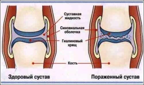 Суставной хрящ истончен перелом тазобедренного сустава лечение народными средствами