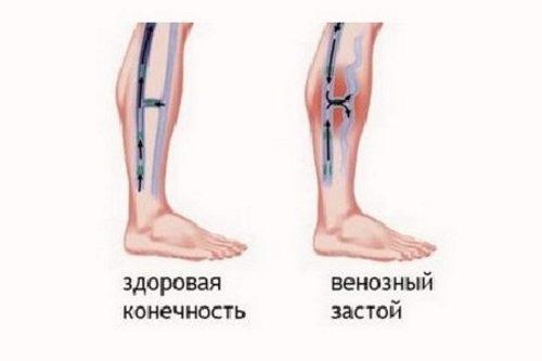 Обзор препарата Синвиск при каких болезнях применяется, как используется