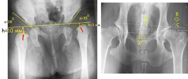 УЗИ тазобедренных суставов у грудных детей норма и патология углов