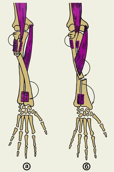 Вывих головки лучевой кости у ребенка