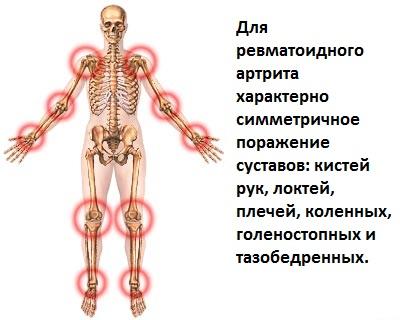 Здоровье и лечениеРеактивная артропатия код по мкб 10