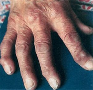 Полиартрит коленного сустава симптомы и лечениеПолиартрит коленного сустава симптомы и лечение