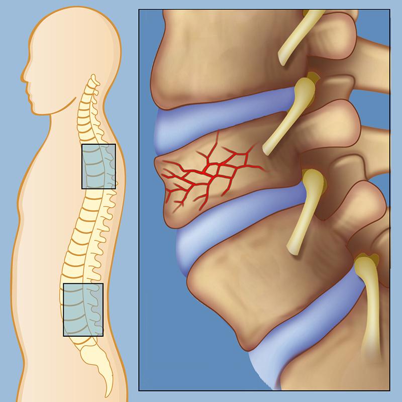 Остеохондроз лечение, причины и симптомы