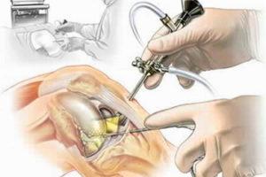 Как лечить воспаление мениска классификация повреждений, диагностика и клиническая картина