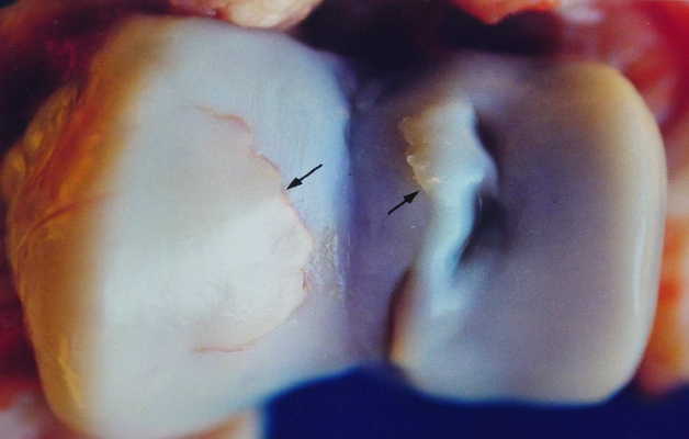 Остеохондроз сустава колена