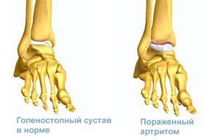 Способы лечения артроза голеностопного сустава
