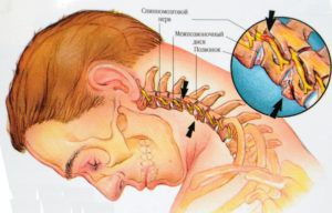 Кавинтон при шейном остеохондрозе