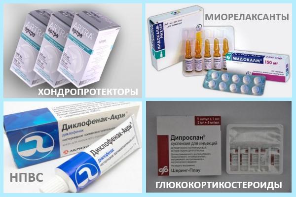 Лекарства от артроза и артрита суставов