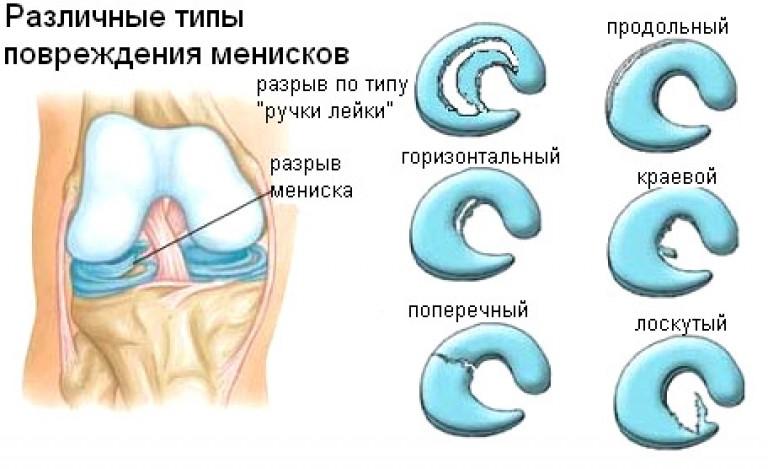 Повреждение мениска классификация степени по stoller