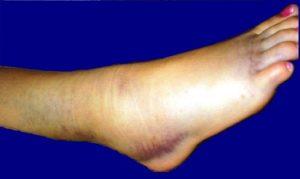 Контрактура голеностопного сустава лечение, осложнения