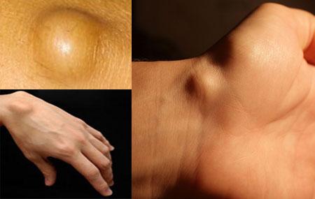 Что такое гигрома, ее причины возникновения и лечение