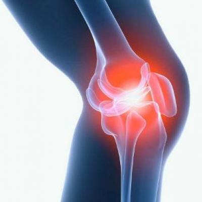 Скованность суставов. Причины, симптомы, лечение