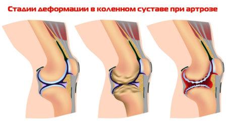 Физические процедуры при артрозе и их влияние на организм