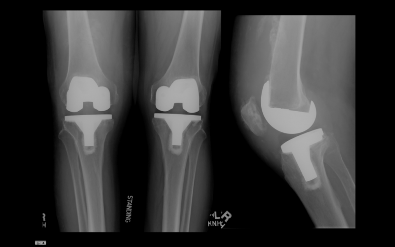 Боли после эндопротезирования коленного сустава