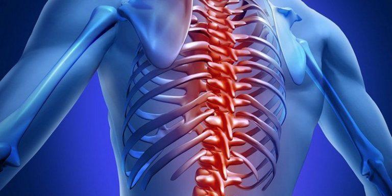 Спондилоартроз позвоночника лечение и профилактика
