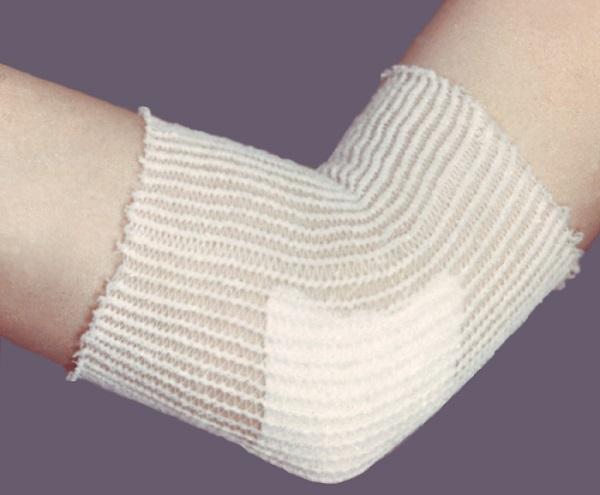 Лечение суставовНаросты на локтях у человека что это