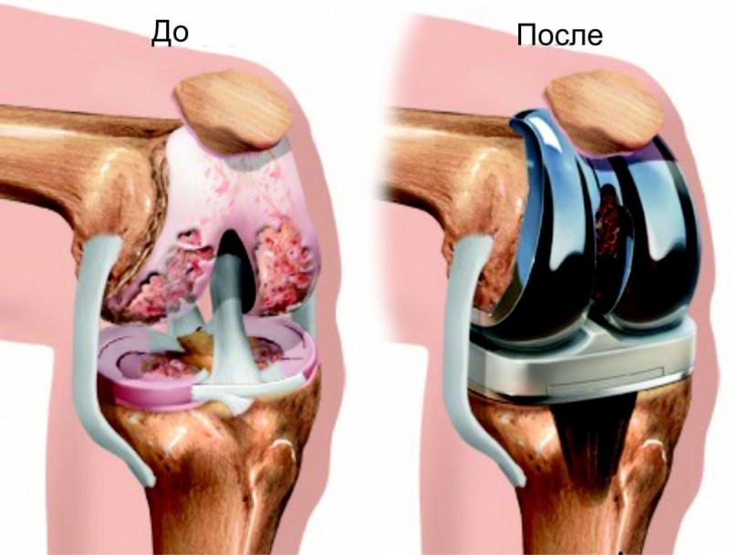 Лечение суставовЭндопротезирование коленного сустава в смоленске по квоте