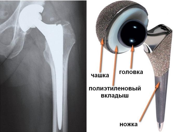 История болезни гонартроз коленного сустава