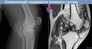 Хондроматоз коленного сустава симптомы, лечение