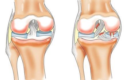 Не хрустиМенископатия коленного сустава симптомы