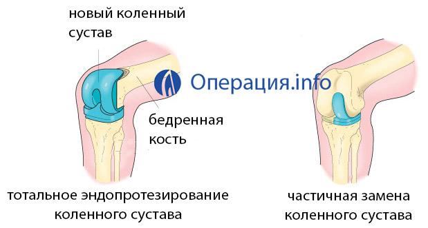 Как выглядит искусственный коленный сустав
