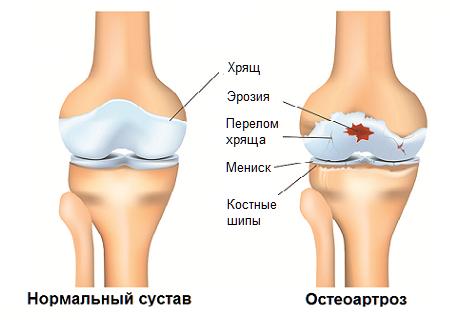 Плавание при артрозе и артрите