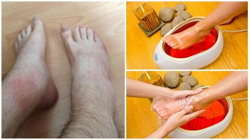 Санаторий лечение ювенильный ревматоидный артрит