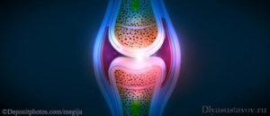 Как убрать жидкость из коленного сустава в домашних условиях