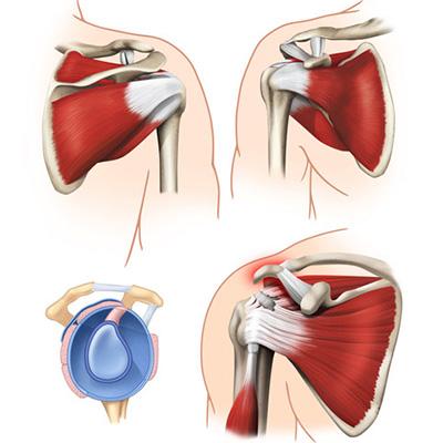 Привычный вывих плеча методы лечения, реабилитация, отзывы