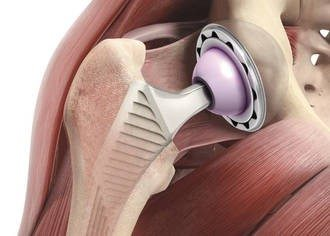 Эндопротезы тазобедренного сустава ведущие производители