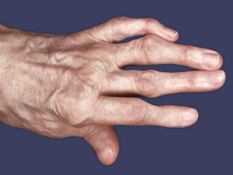 Суставы на пальцах рук артрит фото