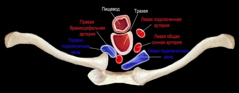Лечение псориаза артроза