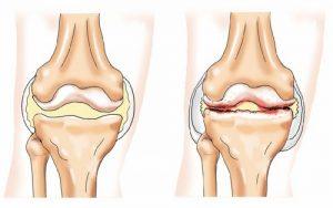 Остеофиты коленного сустава лечение народными средствами