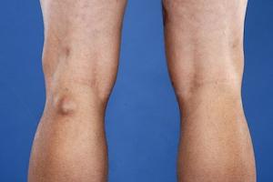 Лечение грыжи Беккера под коленом