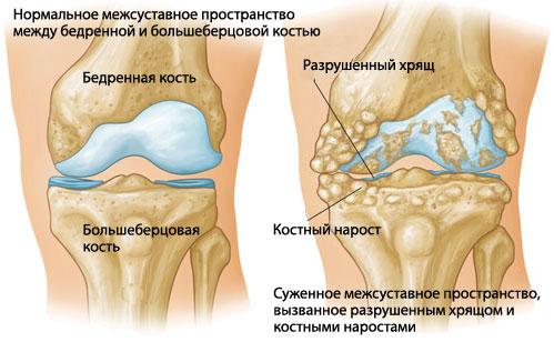 Какие анализы нужно сдать при артрите или артрозе