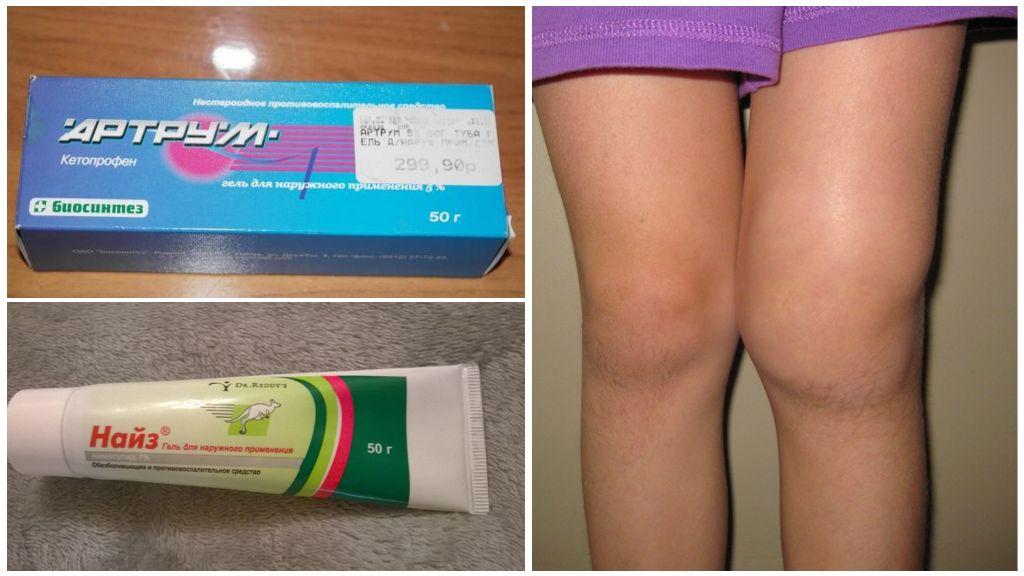 Мази и таблетки от артрита и артроза фото