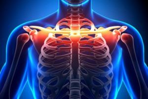 Артроз грудино ключичного сочленения