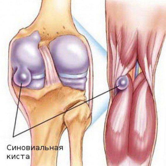 Ганглиевая киста коленного сустава лечение народными