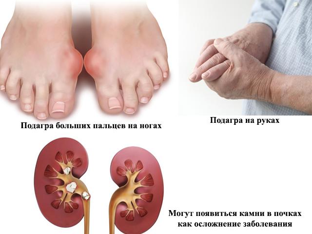 Дешевое лечение остеохондроза