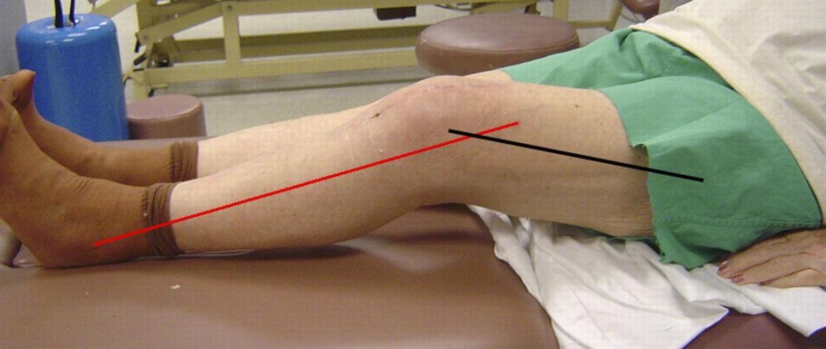 Упражнения при контрактуре коленного сустава 32