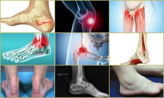 Лечение суставовТендиноз пяточных костей